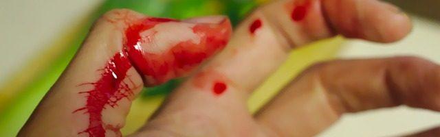 dreamdiary-Bleed